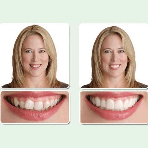 02 820x large a86632ae 6ff6 4237 97ca cd2ee318f60a Couverture De Dents Artificielles Pour Un Sourire Parfait
