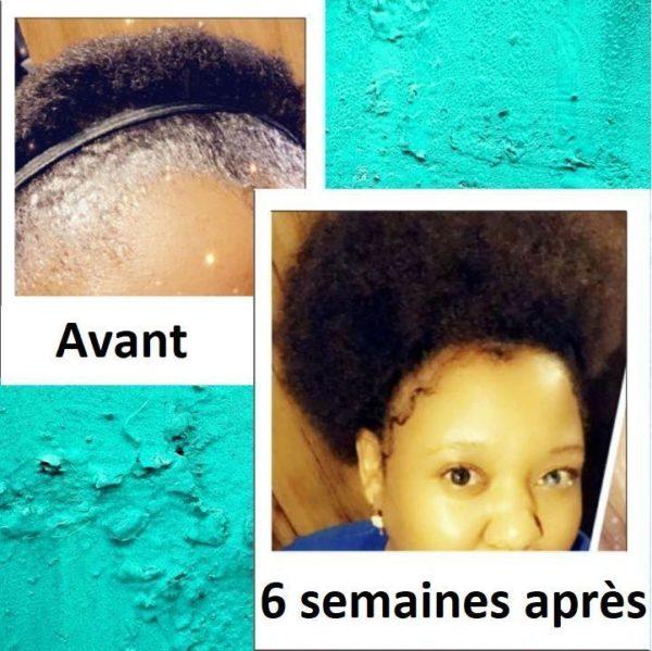 10 dd4ea66c 239f 4f04 a6da 880c2644559f Sérum Pour La Croissance Des Cheveux