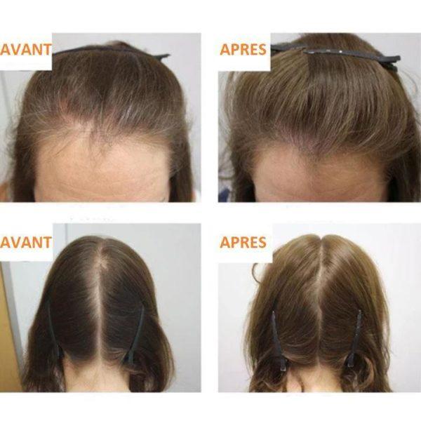4 f87b0251 d786 4bec b5b4 b1deab8d5886 Sérum Pour La Croissance Des Cheveux