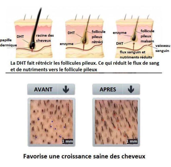 5 853ea1a8 e919 4af1 8e1f fcce00a26665 Sérum Pour La Croissance Des Cheveux