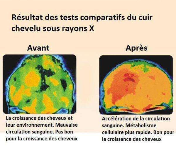 6 e8c62476 9a39 4e36 8b01 c3f052894e81 Sérum Pour La Croissance Des Cheveux