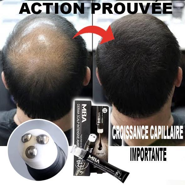 71 8d4433ad 9dac 4270 a702 44769f6bcca3 Sérum De Repousse Des Cheveux En Roll-On