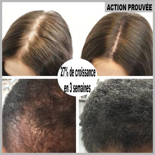72 8ef230a0 645d 46db 9335 8d7944599b6c Sérum De Repousse Des Cheveux En Roll-On