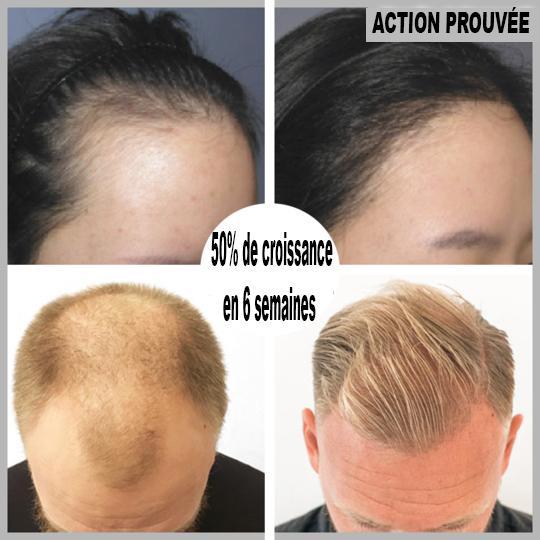 73 8a7460b0 a38a 432f a148 15f75acc20ca Sérum De Repousse Des Cheveux En Roll-On