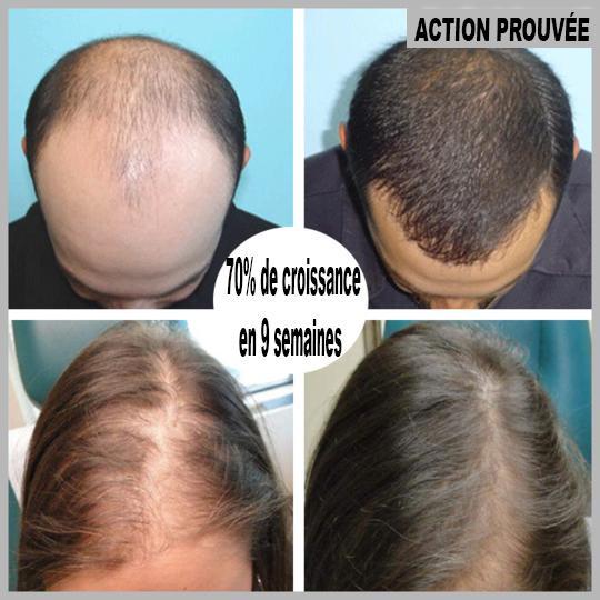74 a7324d86 8eab 4475 bdc6 23c62c0137d8 Sérum De Repousse Des Cheveux En Roll-On