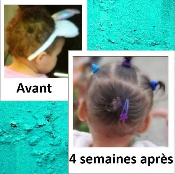 7 ab2bc018 a693 4765 bdeb 09f0dfdb57b6 Sérum Pour La Croissance Des Cheveux