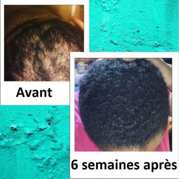 9 617c5537 05c3 4ec2 8870 6c43dcd1f3c7 Sérum Pour La Croissance Des Cheveux