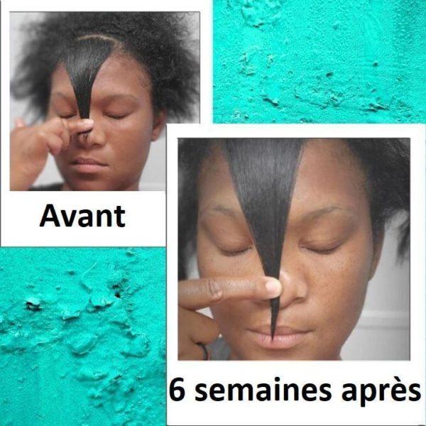 F2 800x 386ed730 f208 48f7 92d3 cc22d03824b6 Sérum Pour La Croissance Des Cheveux