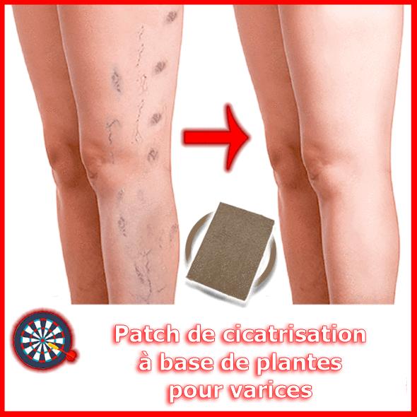 Patch de cicatrisation des varices 4877cdcb d96c 4a16 8cb0 58c2b1ad362d Patch De Cicatrisation À Base De Plantes Pour Varices