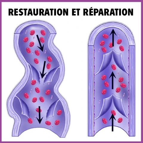 RESTAURATION ET REPARATION Patch De Cicatrisation À Base De Plantes Pour Varices