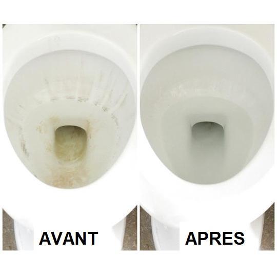 W2 14922a9c a1cd 4a0c bd09 4a869f9493fa Nettoyant Automatique Pour Toilettes
