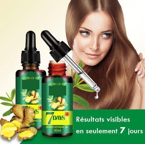 a large 350a1b1e 86d1 4e3e a0d5 e1c234dfac7f Sérum Naturel Contre La Perte De Cheveux