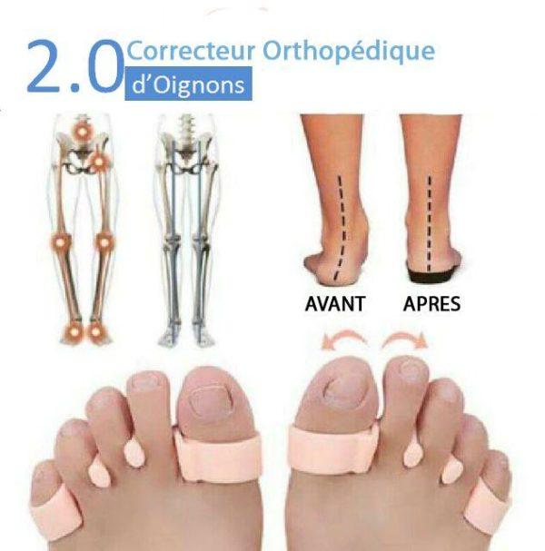 photoshop1 e63582cc 1114 475f 89ee a170596a785f Correcteur Orthopédique D'oignons