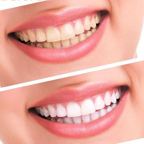 product image 140254363 large f5242ab6 ef7b 4cc8 aca8 bb9b8c296eec Appareil Pour Blanchir Les Dents Facilement