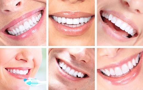 product image 140254382 large e6ce671a 3ce6 4199 98af d274e36d6107 Appareil Pour Blanchir Les Dents Facilement